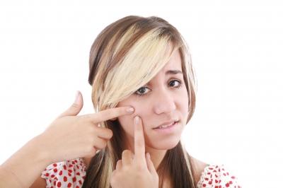 Lotion corporelle contre l'acné